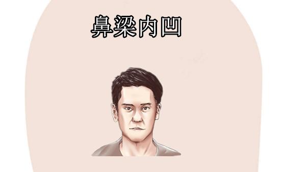 俗語:男人眼睛一下垂,媳婦不用出力;鼻子一內凹,婚後夫妻和!-圖4