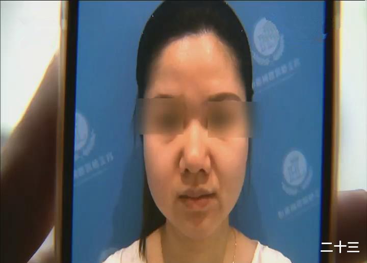 女子嫌自己鼻頭太大去整形,手術之后直接崩潰:看起來像妖怪一樣!
