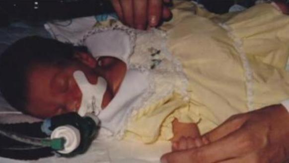 36年前,一美国女婴移植了狒狒心脏,她活下来了吗?