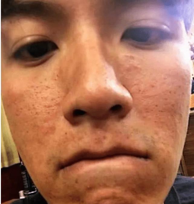 """是被黑粉攻擊,還是真""""爛臉""""?明星的皮膚也許真的不好-圖6"""