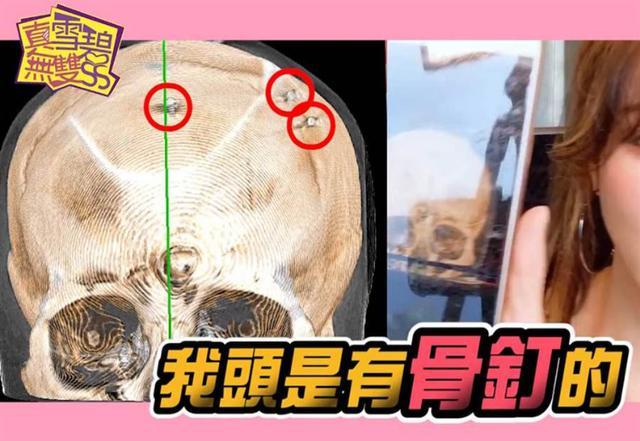 女星花400萬整形,為變美把頭皮掀開打骨釘,隻因被前男友嫌太醜-圖5